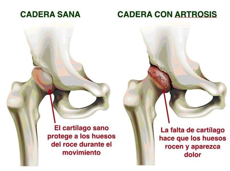 Prótesis De Cadera Contraindicaciones E Indicaciones Mas Que Salud Anatomia Y Fisiologia Humana Ortopedia Y Traumatologia Consejos Para La Salud