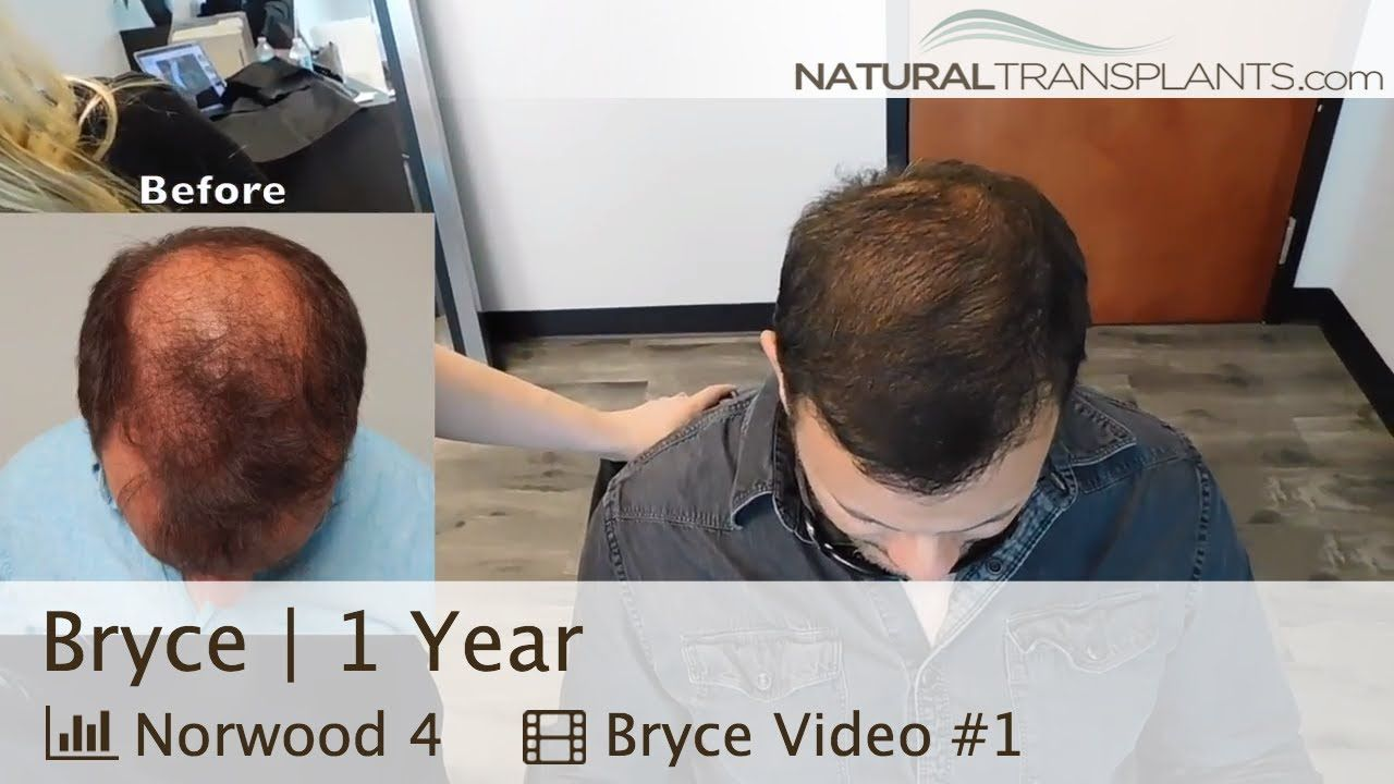 Hairline Restoration Before And After Hairline