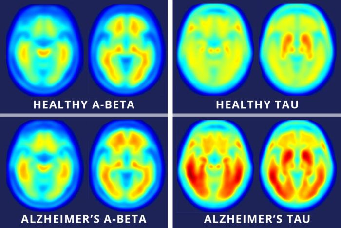 New Imaging Technique Could Help with Future Alzheimer's Diagnosis http://cognitivetherapeutics.com/Newsroom/Blog/new-imaging-technique-could-help-with-future-alzheimers-diagnosis/