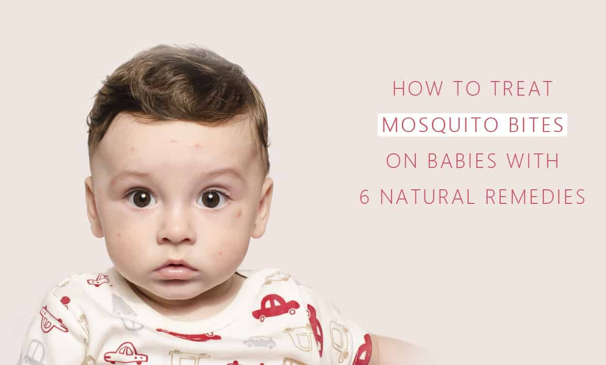I Recommend Wpx Hosting Remedies For Mosquito Bites Baby Remedies Treating Mosquito Bites