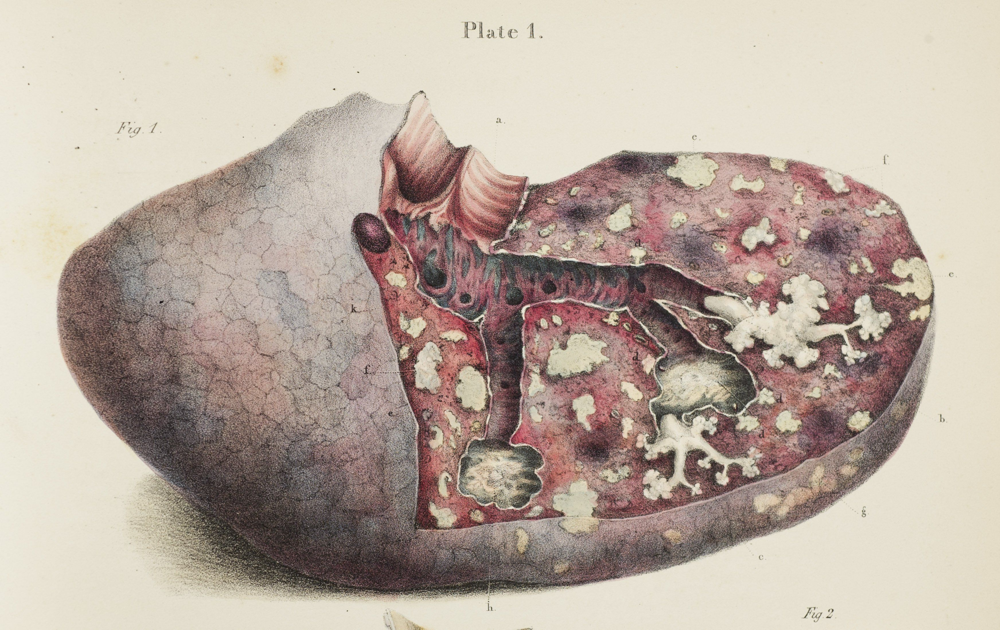 Robert Carswell, Pathological Anatomy. Illustrations of the ...