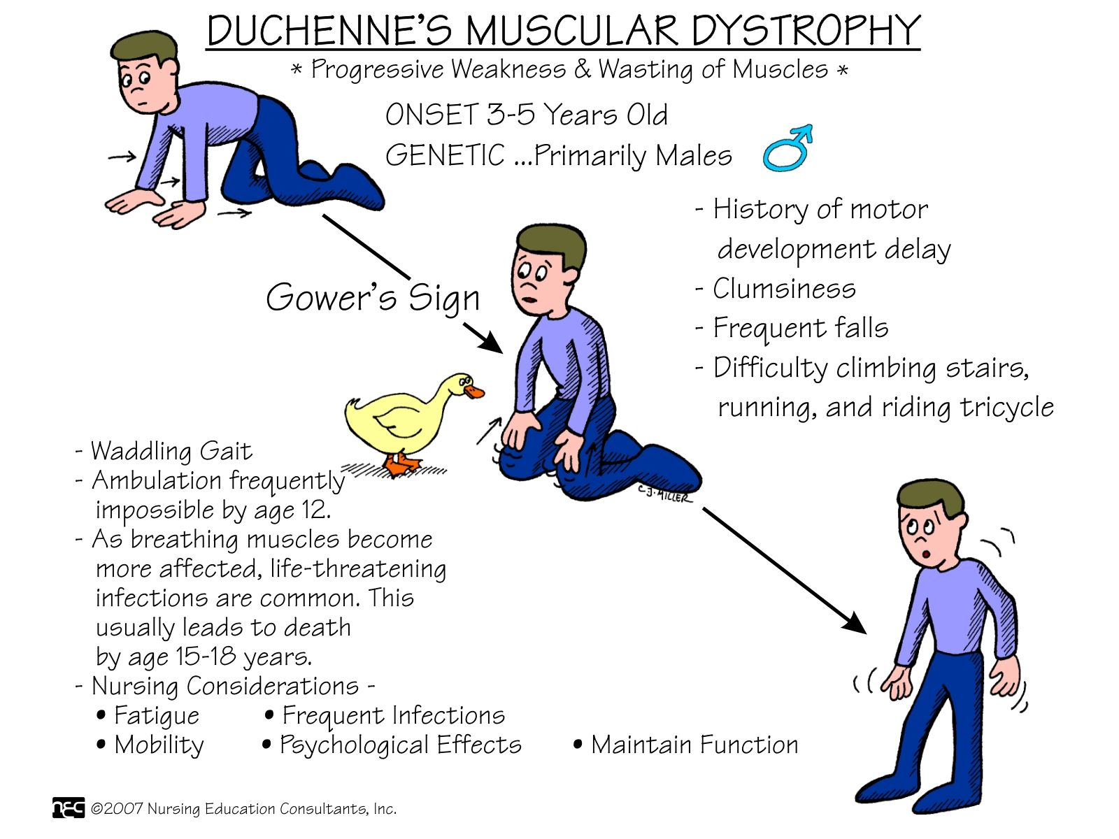 Duchenne Muscular Dystrophy Death Statistics Nursing Health Assessment Mnemonics And Tips Amsterdam