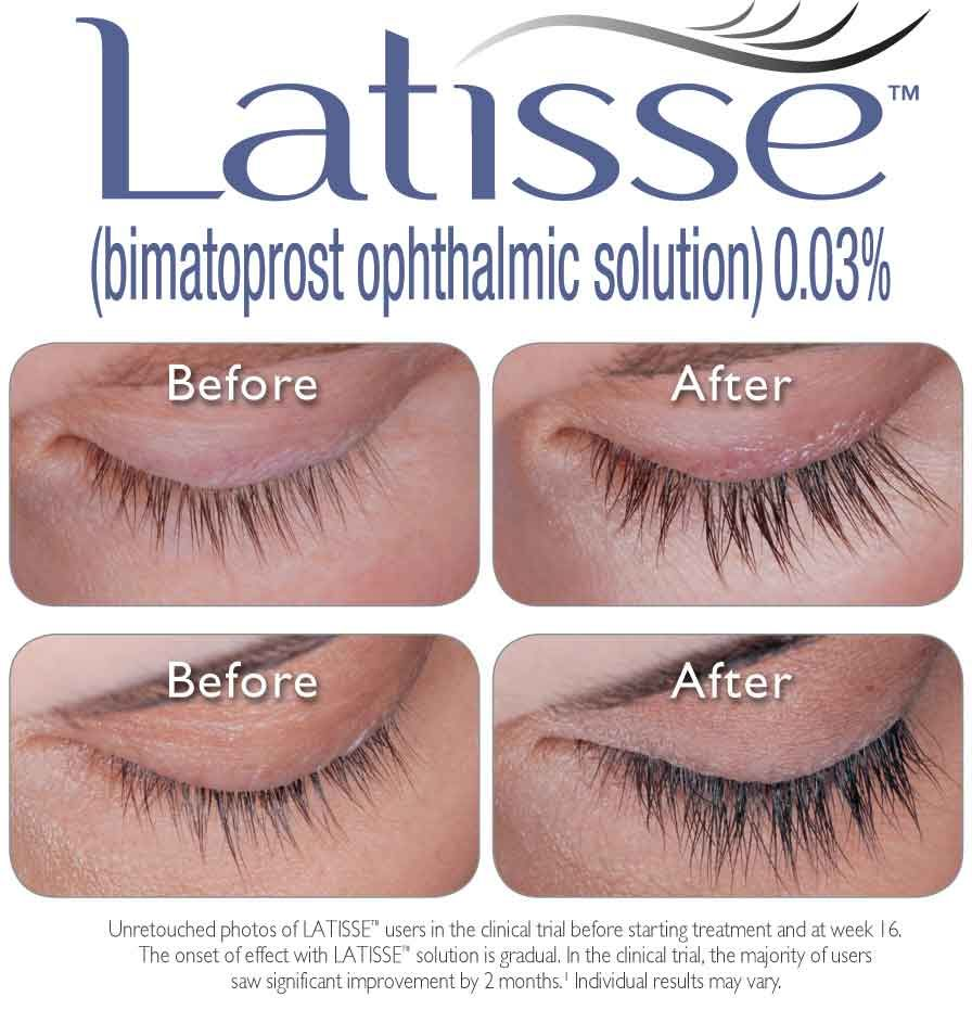 Want Luxurious Lashes Latisse Will Help Your Lashes Grow Thicker