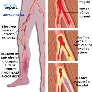 durere în picior sub articulație