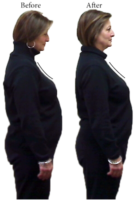 Before and After Chiropractic clinic, Improve posture