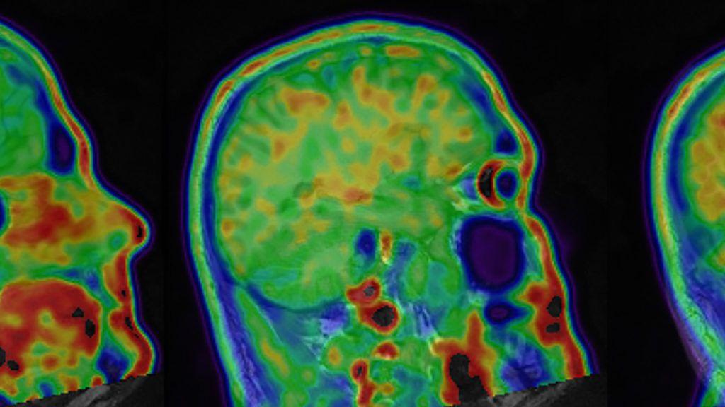 Pin on CTE Chronic Traumatic Encephalopathy