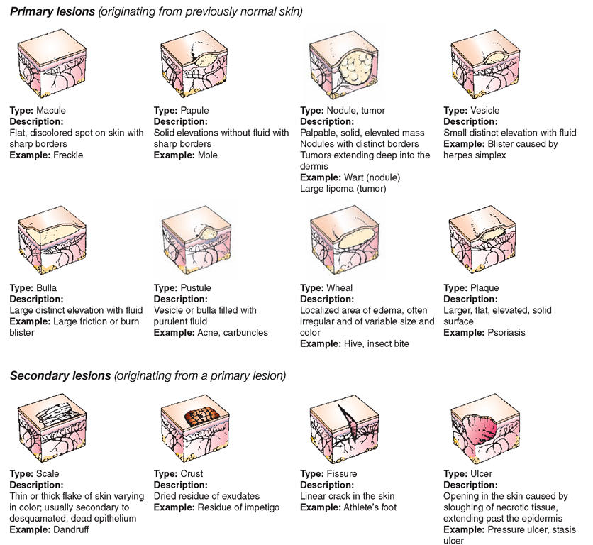 types of skin lesion cheat sheet | cheat sheets and types of, Skeleton
