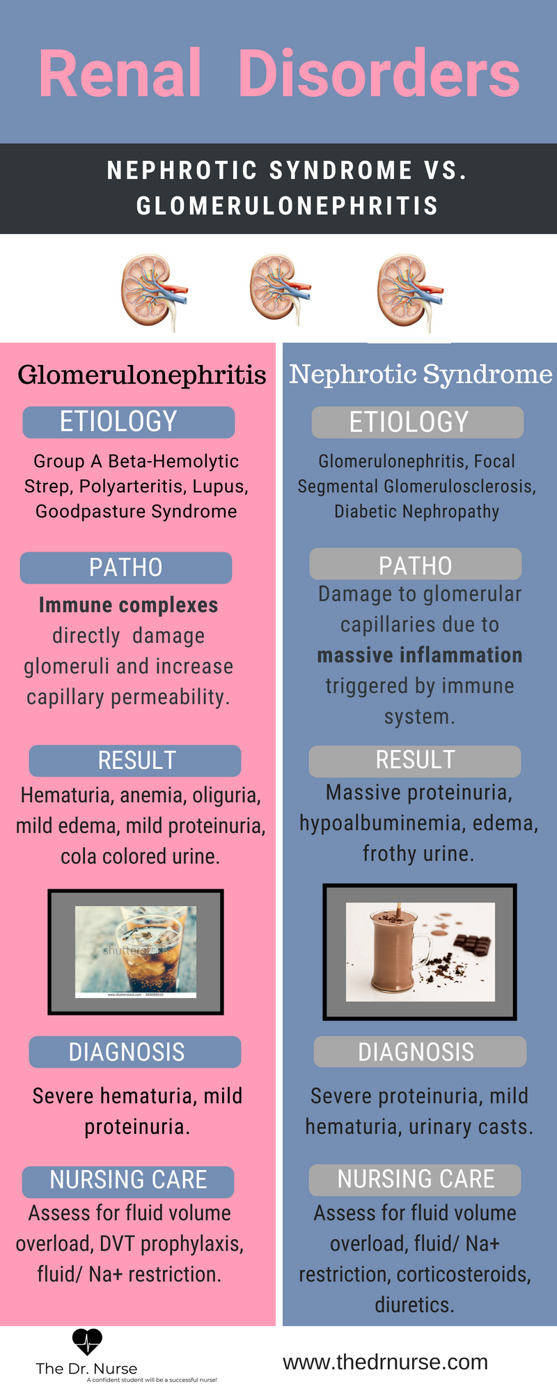 everything you need to know about glomerulonephritis and nephrotic syndrome  find more like this