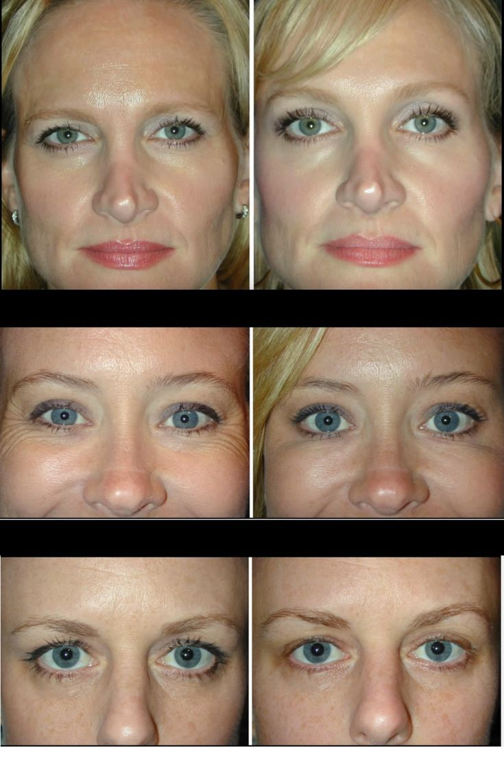 Botox for an eyebrow lift? You would be amazed at the ...
