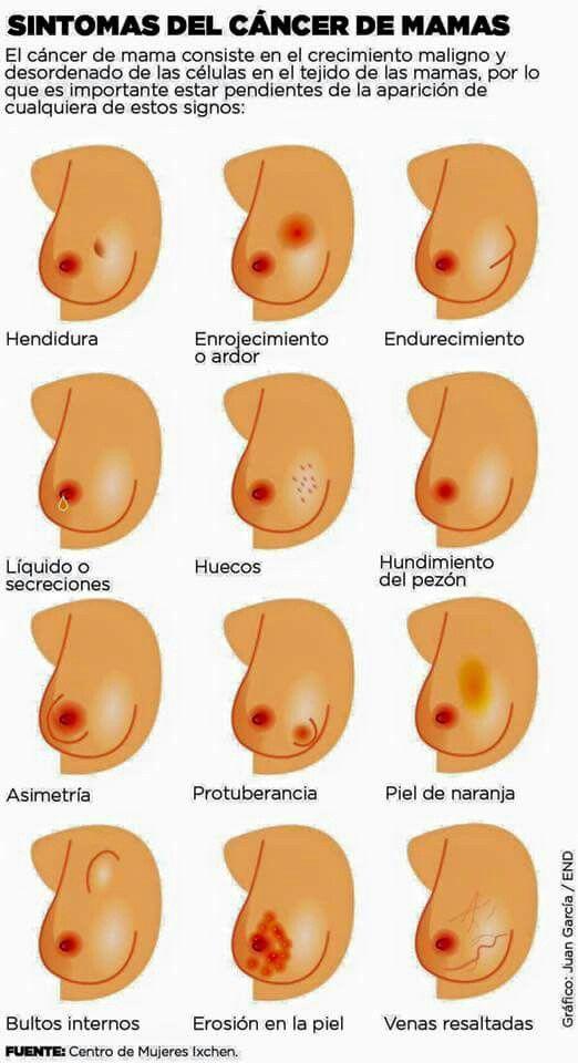 Síntomas del cáncer de Mamas. | Salud | Pinterest | Salud