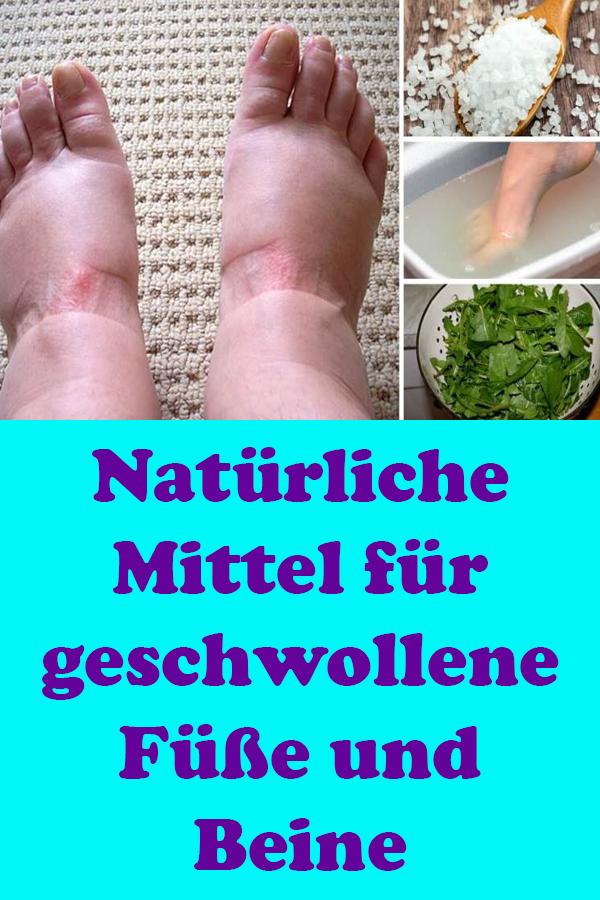 Naturliche Mittel Fur Geschwollene Fusse Und Beine Geschwollener Fuss Geschwollene Beine Beine