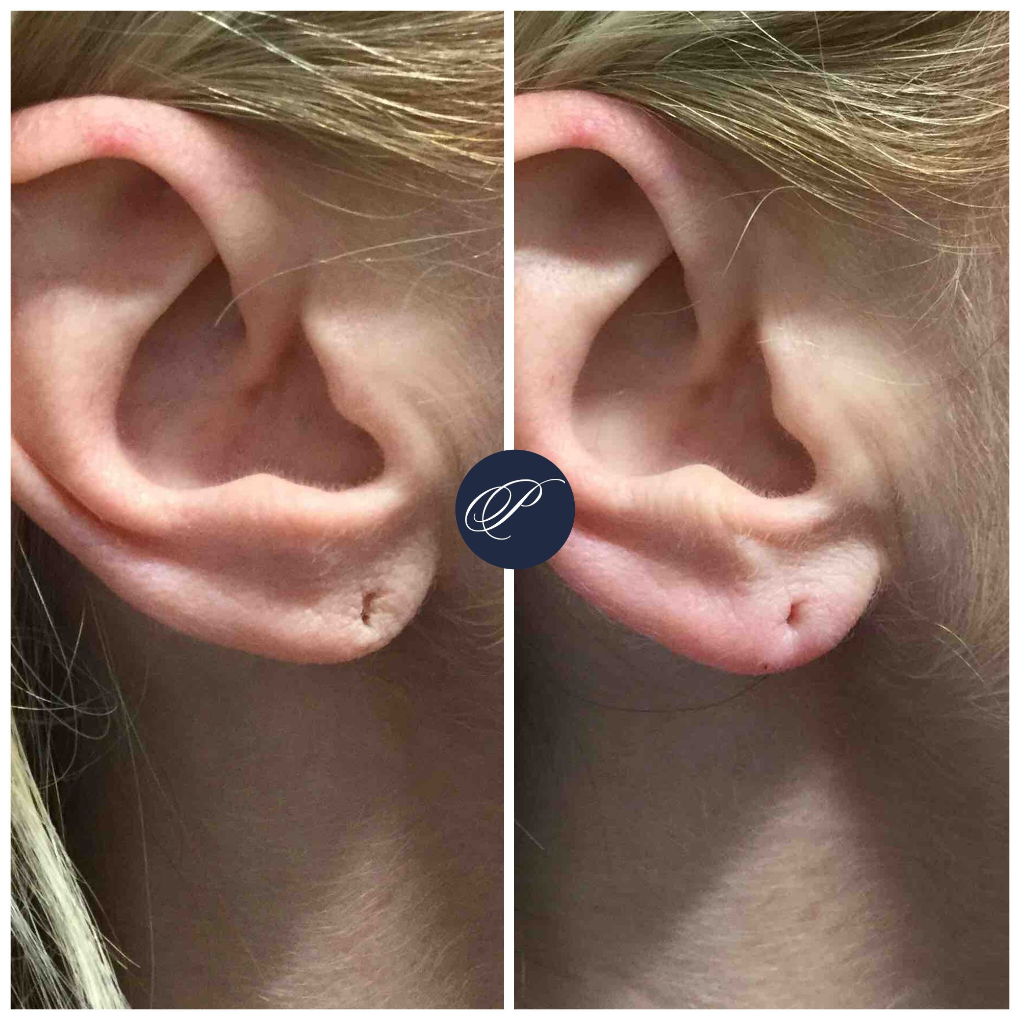 Fillers are great for repairing earlobes. By adding volume