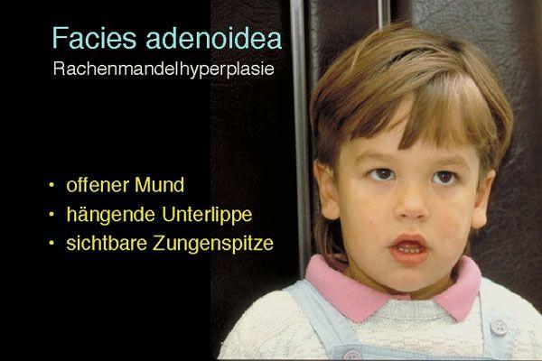 Facies Adenoidea HNO Pinterest Search