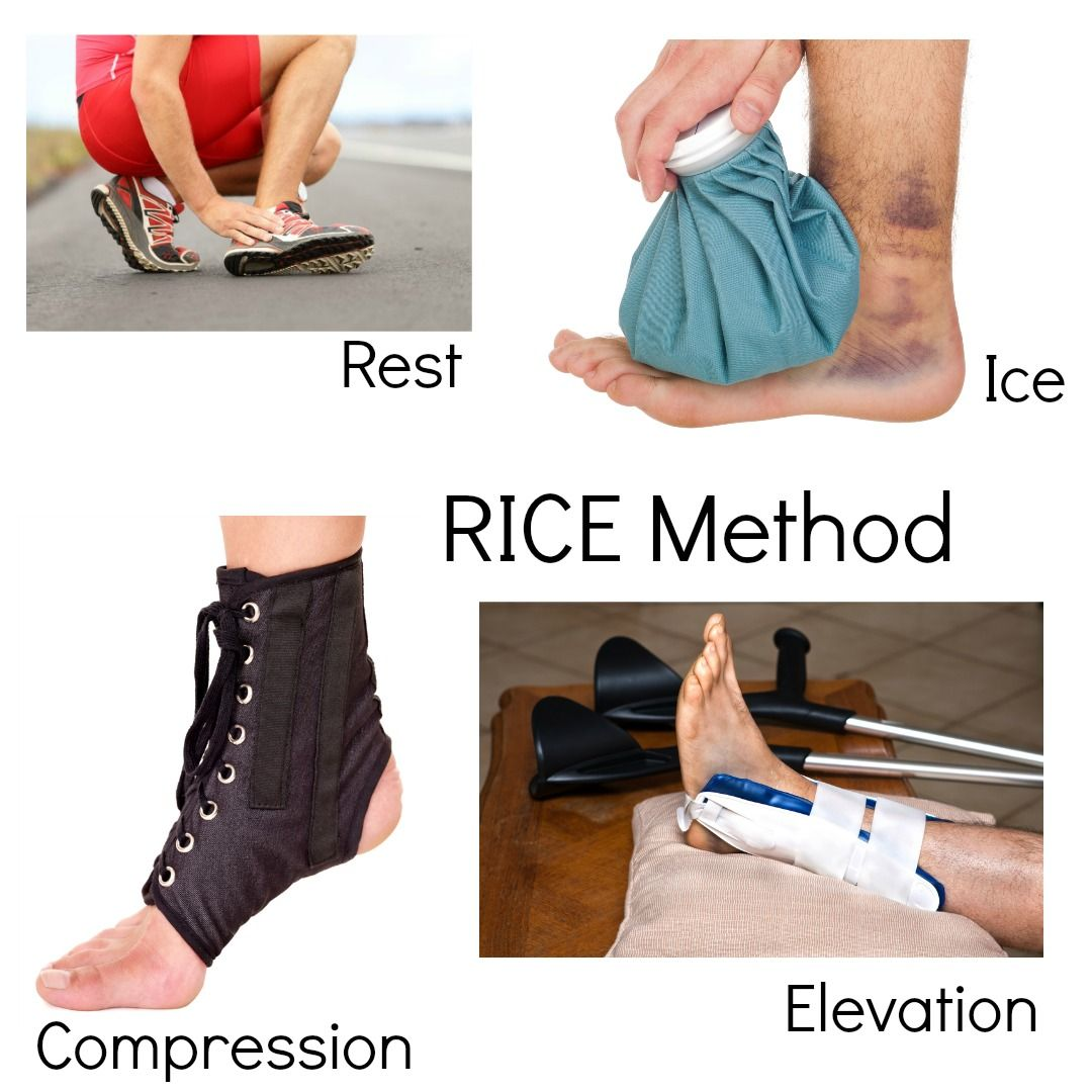 Rolling Your Ankle Is It Sprained Or Broken Sprained Ankle Sprain High Ankle Sprain