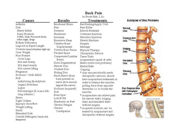 Causes Back Pain Diagram - Block And Schematic Diagrams •