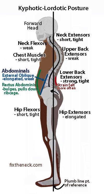 Kephotic Lordotic Posture Health Amp Motivation Posture