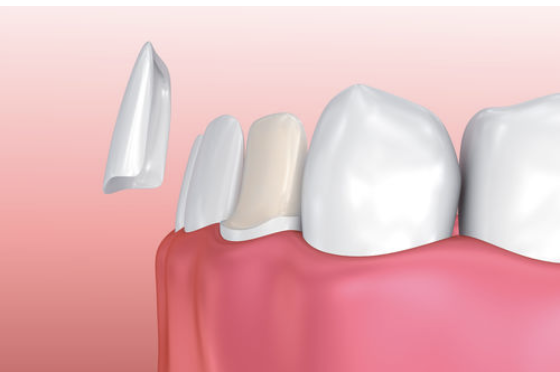 Dental Veneers Are Thin Dental Laminates Which Are Placed On The Front Of Your Teeth They Are Also Color Matche Dental Veneers Veneers Teeth Porcelain Veneers