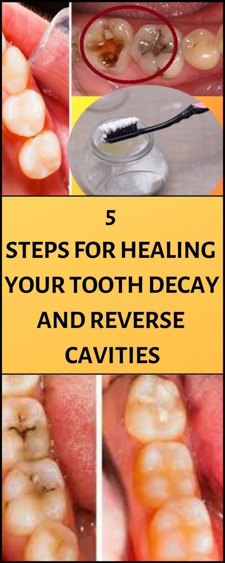 Polite Tooth Extraction Kids oralhealthmonthja