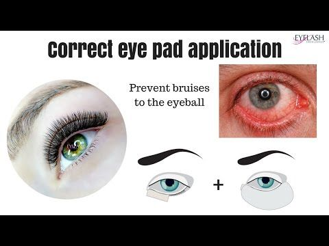 388a35c913f This video shows you why you can get the bruised eye ball - every lash tech