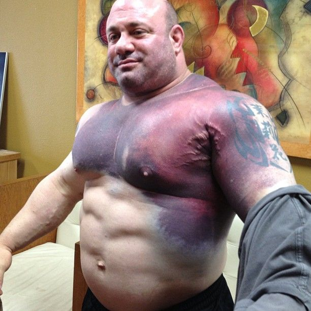Scott Mendelson After He Tore His Pec In A 716 Pound Bench Press World Record Attempt Bench Press Muscle Tear World Records