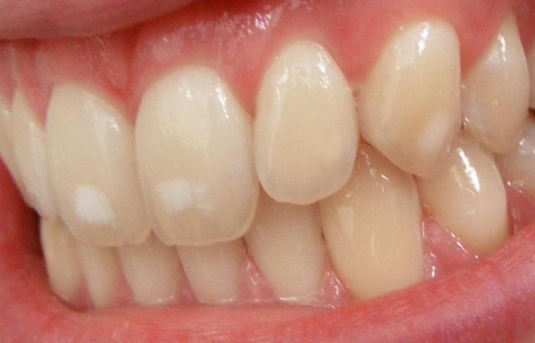 515403f71965a07ccf9903b0c43e5404 - How To Get Rid Of White Spot Lesions On Teeth