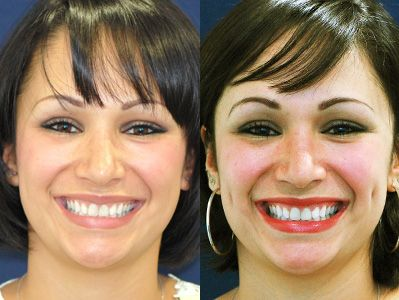 Dimple Implants Before and After | exercises | Dimple