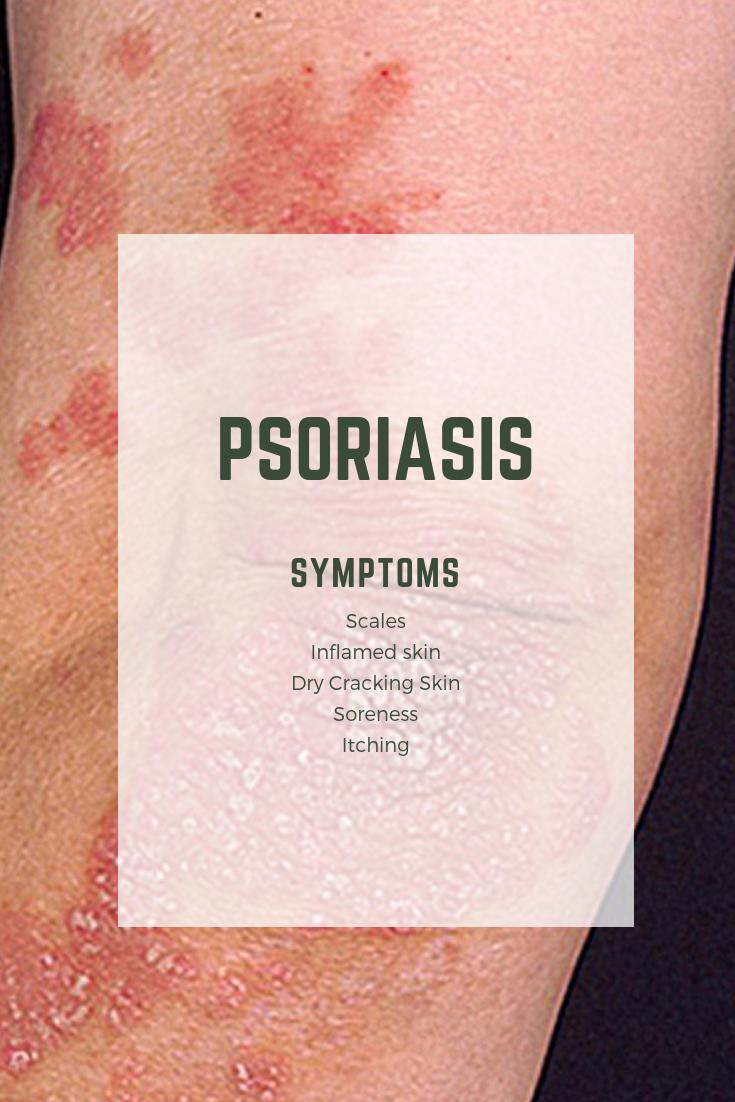 autoimmune psoriasis treatment