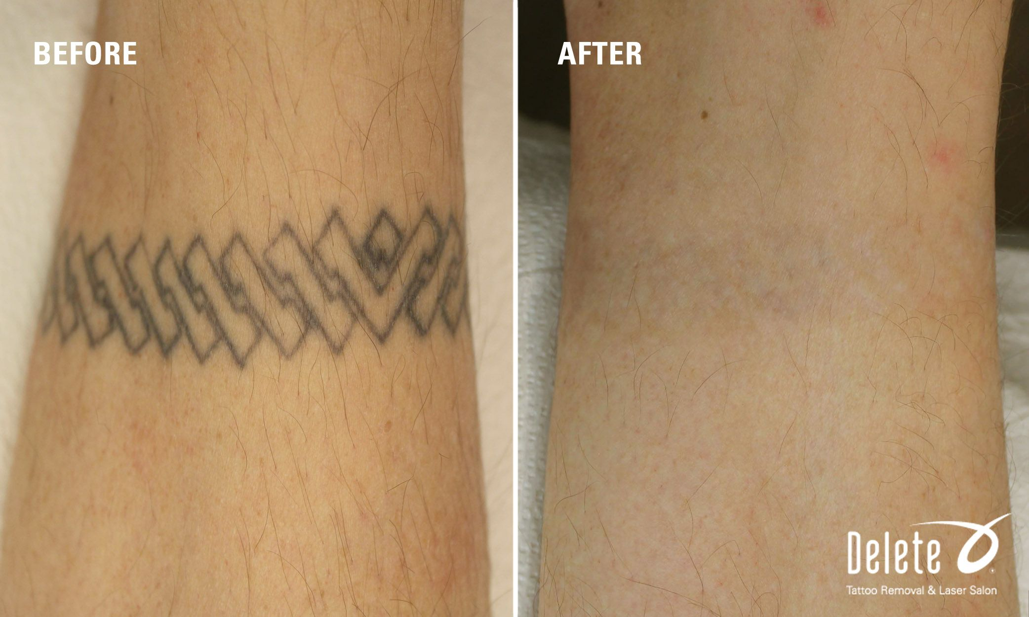 Happy Monday Today S Before After Tattoo Removal Photo Is A Bracelet Tattoo Removed From Our Patient S Wrist What Laser Tattoo Cool Tattoos Tattoo Removal