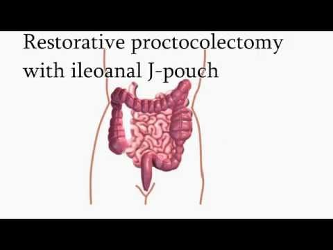 Ulcerative Colitis Surgery | Restorative Proctocolectomy With ...