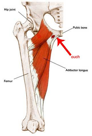 right groin pain female |  pain in the left upper-thigh / groin, Skeleton