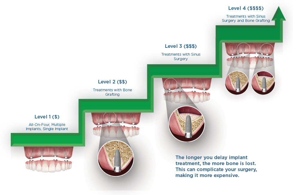 How Much Do Dental Implants Cost Dental implants prices