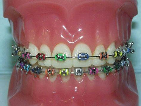 Rainbow Braces | Orthodontics | Dental braces, Braces colors