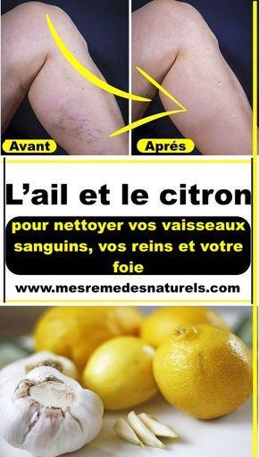 Citron Pour Les Arteres : citron, arteres, Remède, Maison, Nettoyer, Vaisseaux, Sanguins,, Reins, Votre, Foie., Health,, Health, Tips,, Coconut, Benefits