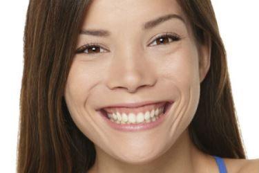 bdb445d9231eb Cirurgia plástica gengival pode reduzir o sorriso gengival e melhorar  aparência da gengiva. Entenda como é feita a plástica gengival.