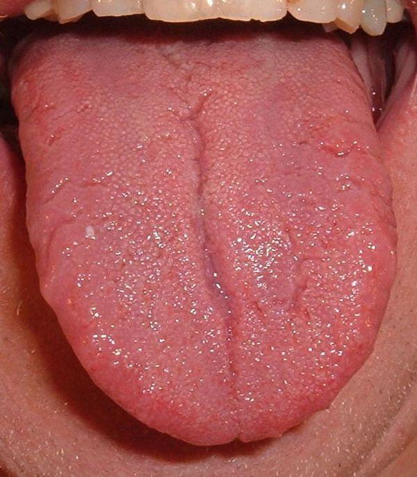 Tongue Sores, Tongue Health, Sore