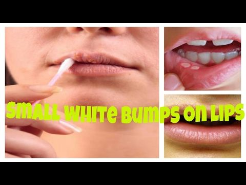 51748936106b197da3a84269ccd619dd - How To Get Rid Of Small White Bumps On Lips
