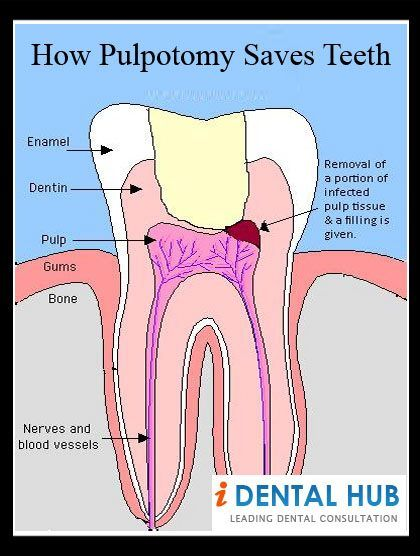 know about the how pulpotomy saves teeth