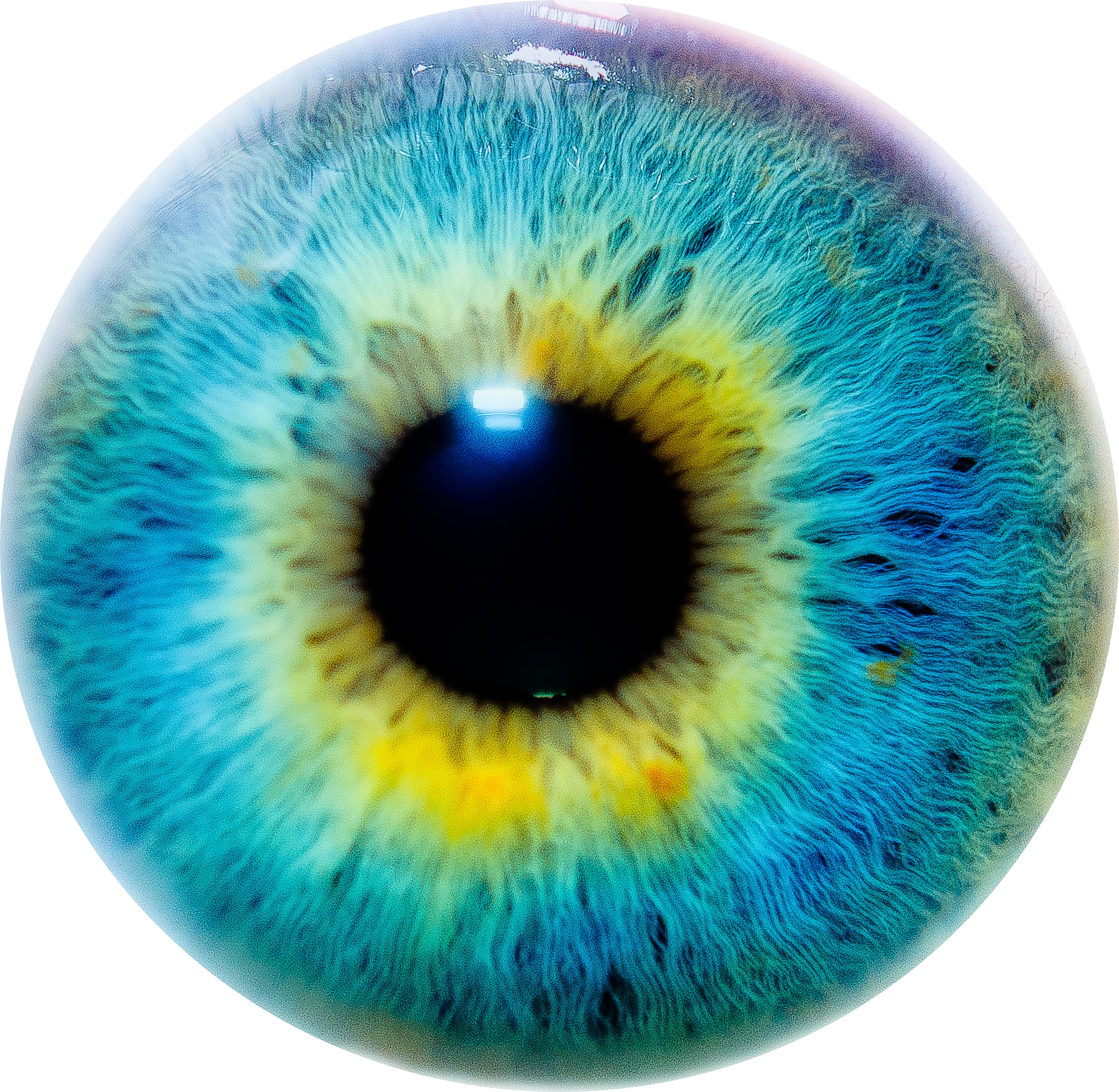 Green eye chicago