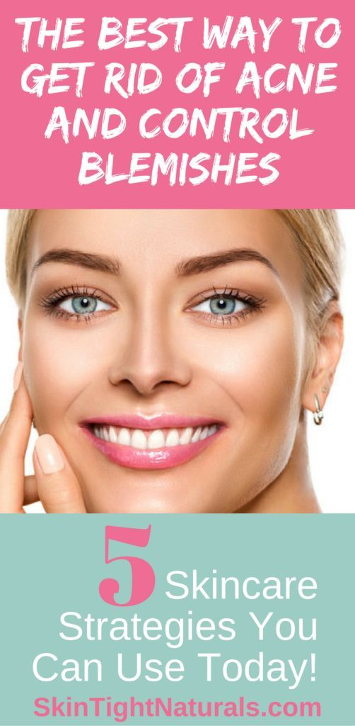 How To Control Blemishes And Get Rid Of Acne Fast And Quick Acne Remedies Tips For Oil Control Click Through To Read The Best Way To Get Rid Of Acne And