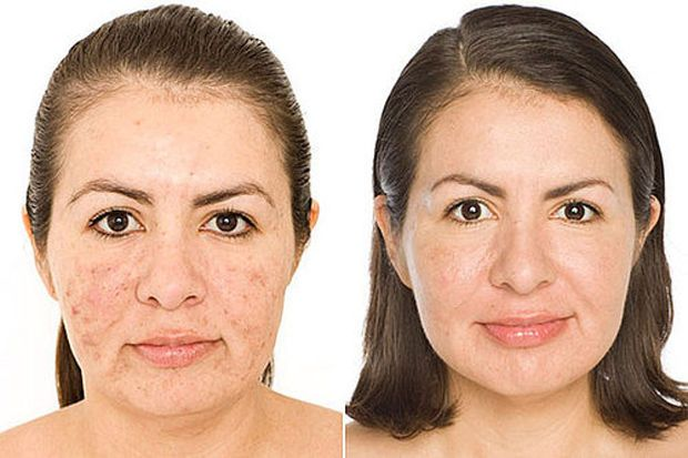 Kate Somerville's client before (left) and after (right).