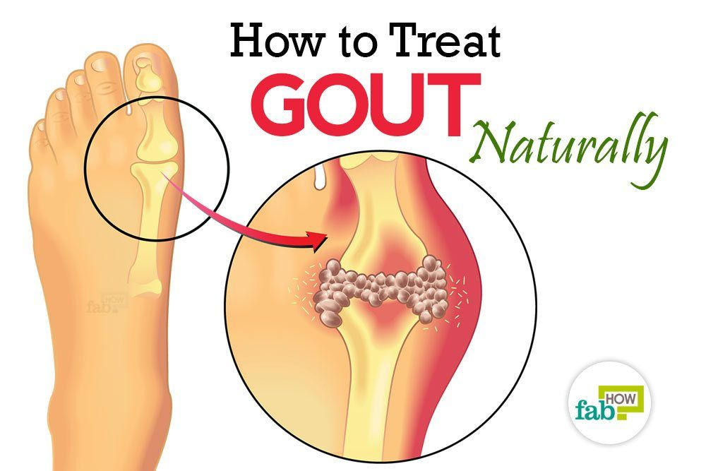 Ways To Treat Gout Naturally