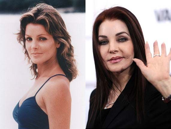 Priscilla Presley Plastic Surgery Before And After Oh