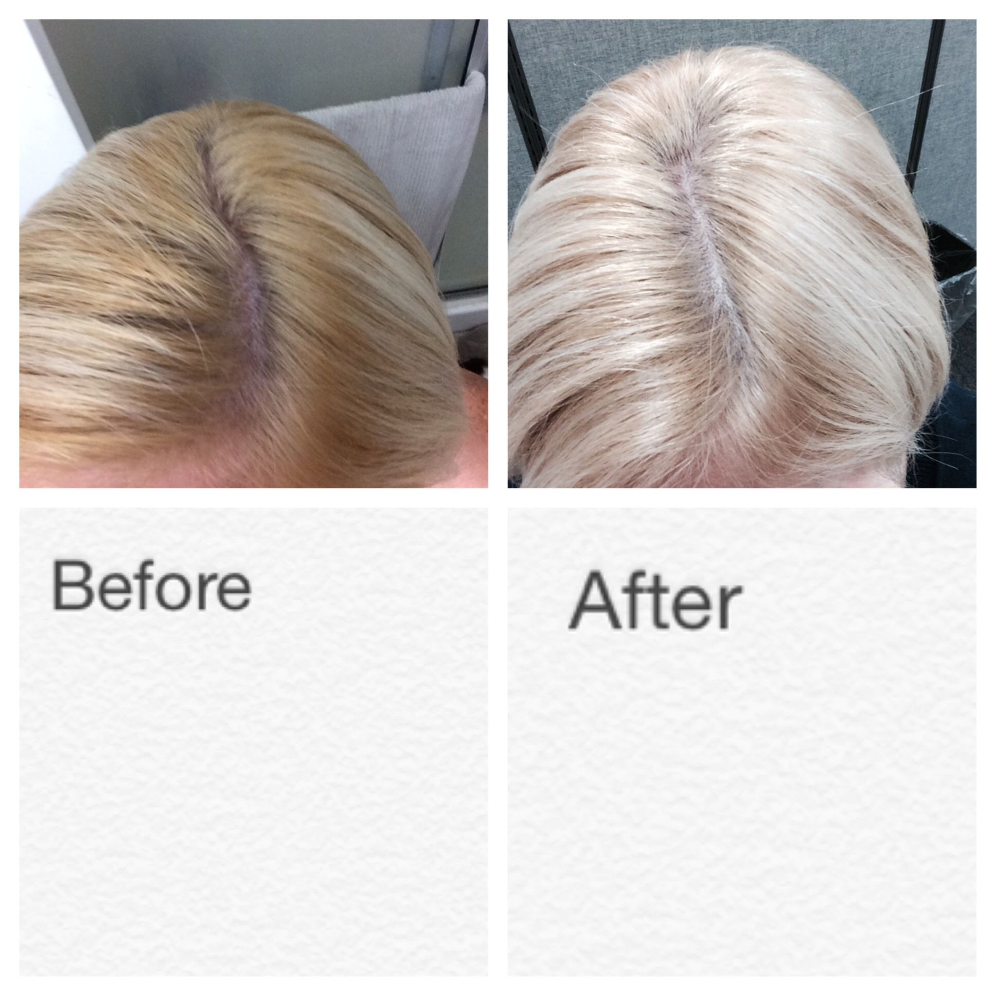 Apple Cider Vinegar Before And After Hair Www Pixshark
