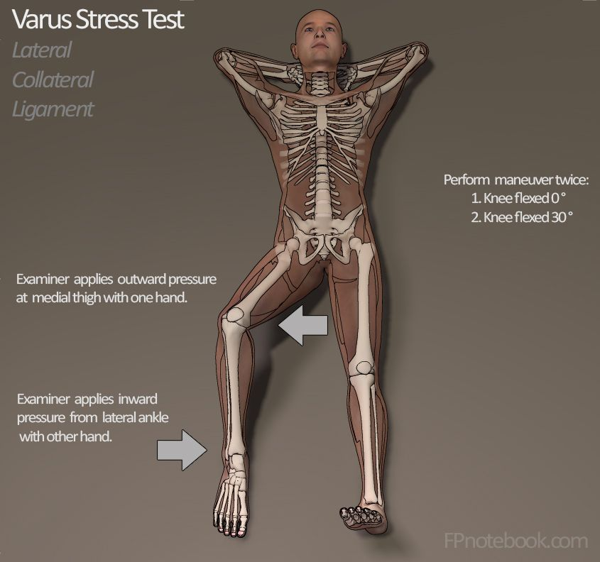 Stress Test Business: Knee Valgus Stress Test