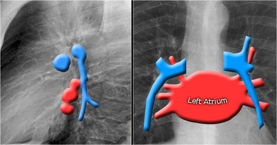 Pin by Sekar Mac on xray X ray, Arteries, Radiology