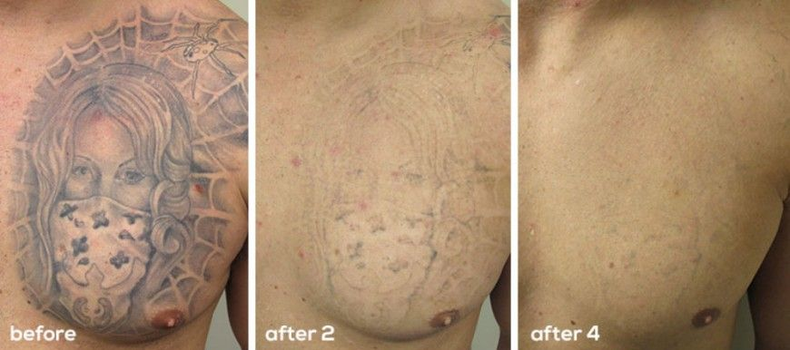 Laser tattoo removal the effective and safe way to get