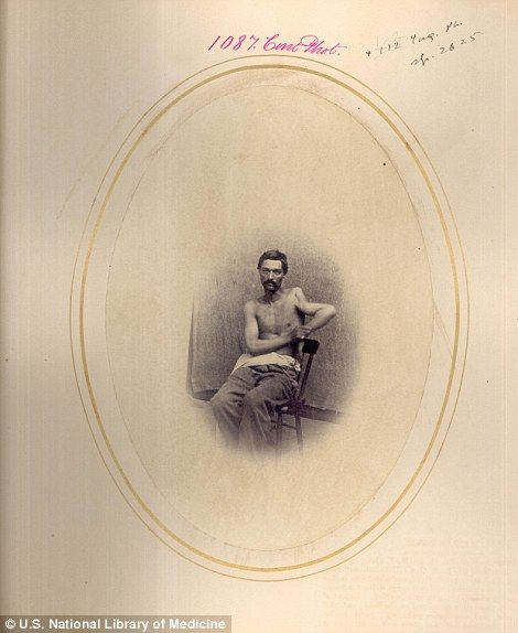 Private John Trombley, from the Michigan Volunteers, who had his humerus bone resectioned following the Battle of Wilderness