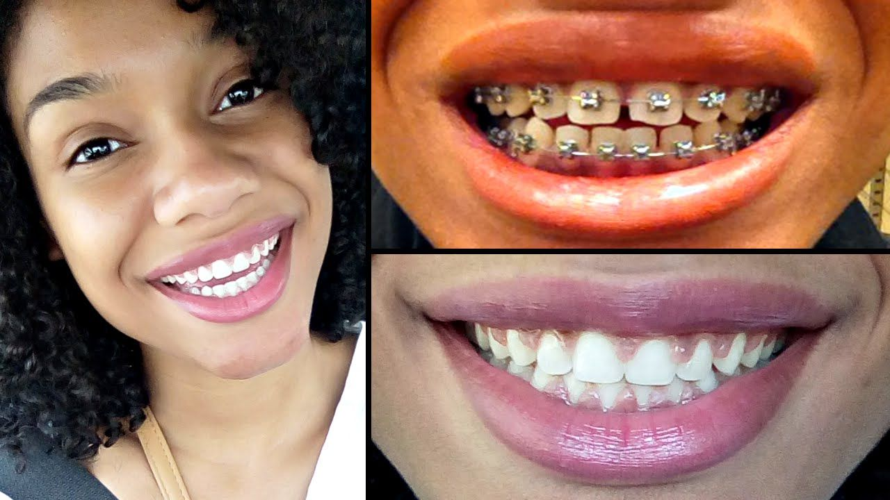 Getting my braces off kimberlyn xo braces off getting