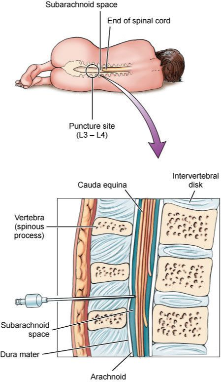 Lumbar Puncture Diagram Saas Architecture Side Lying Position For School