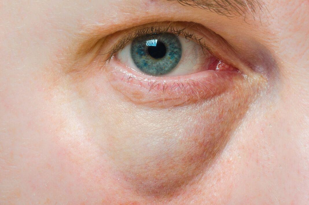 5 Mangel An Vitaminen Die Sich In Deinem Gesicht Zeigen Njuskam Puffy Eyes Remedy Cure Puffy Eyes Baggy Eyes